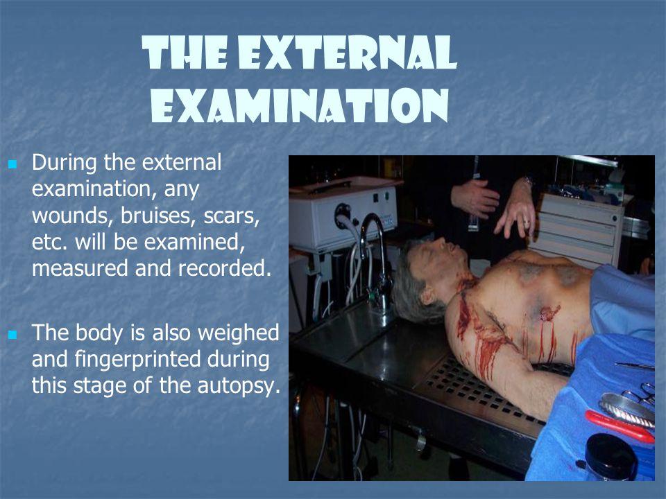 The External Examination