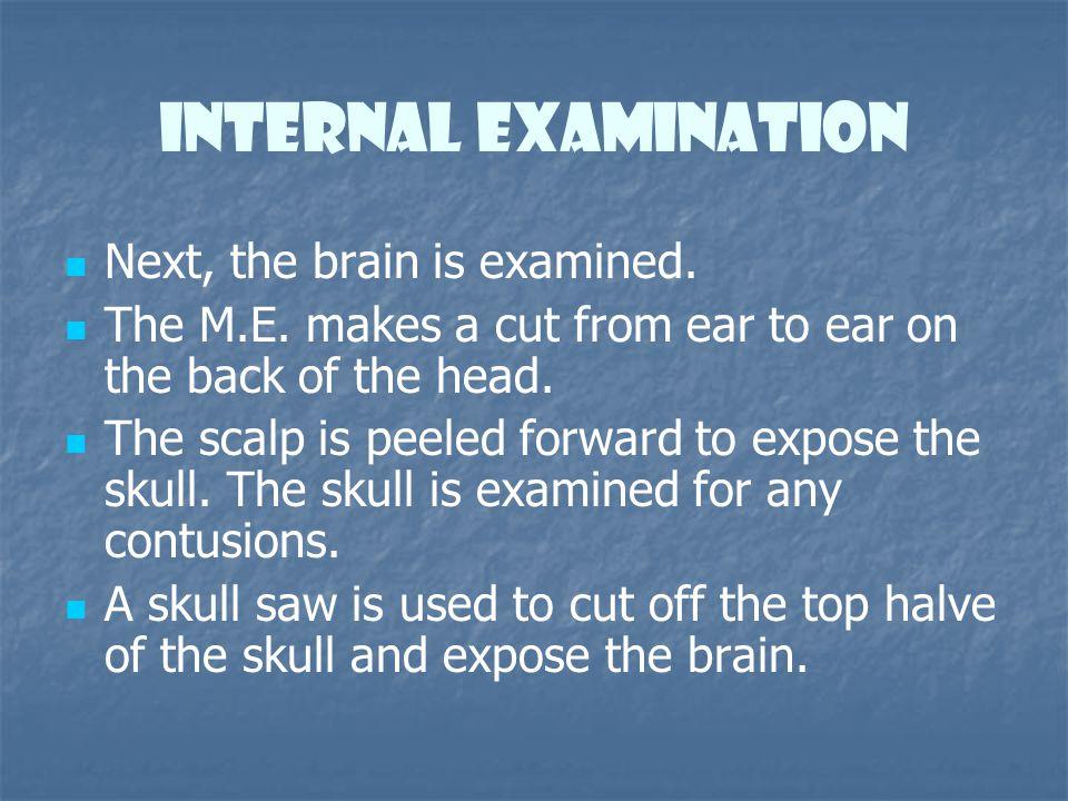 Internal Examination Next, the brain is examined.
