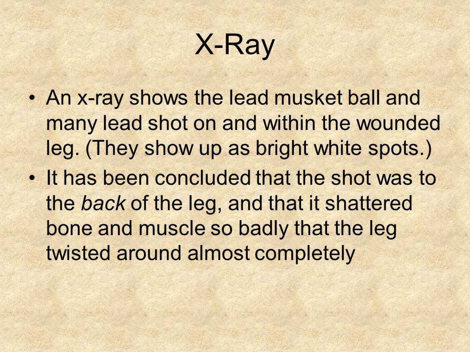 X-Ray An x-ray shows the lead musket ball and many lead shot on and within the wounded leg. (They show up as bright white spots.)