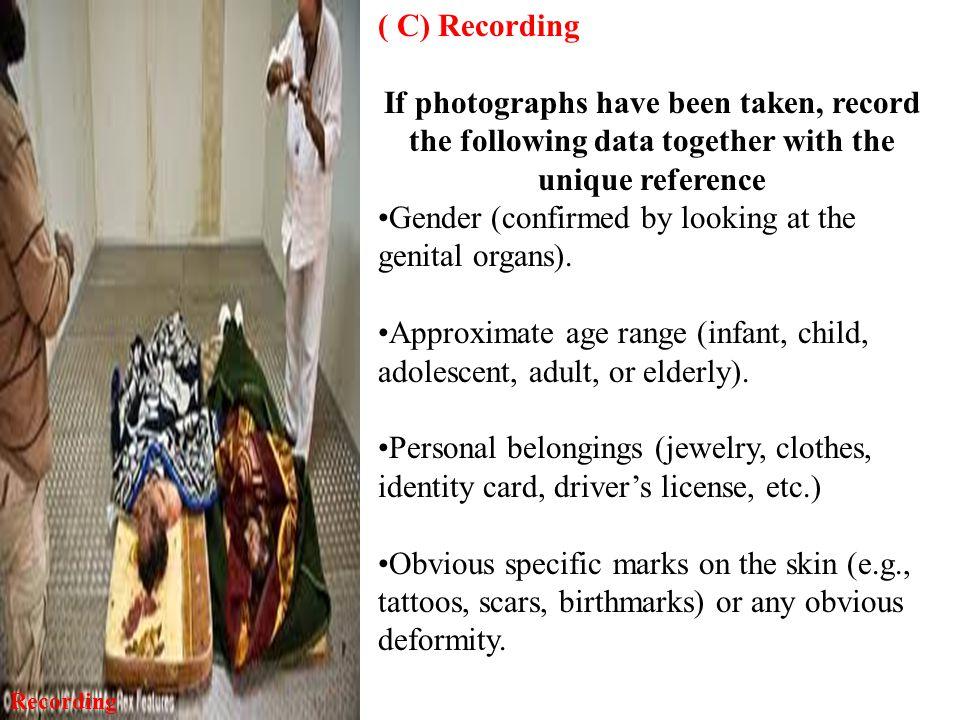 Gender (confirmed by looking at the genital organs).