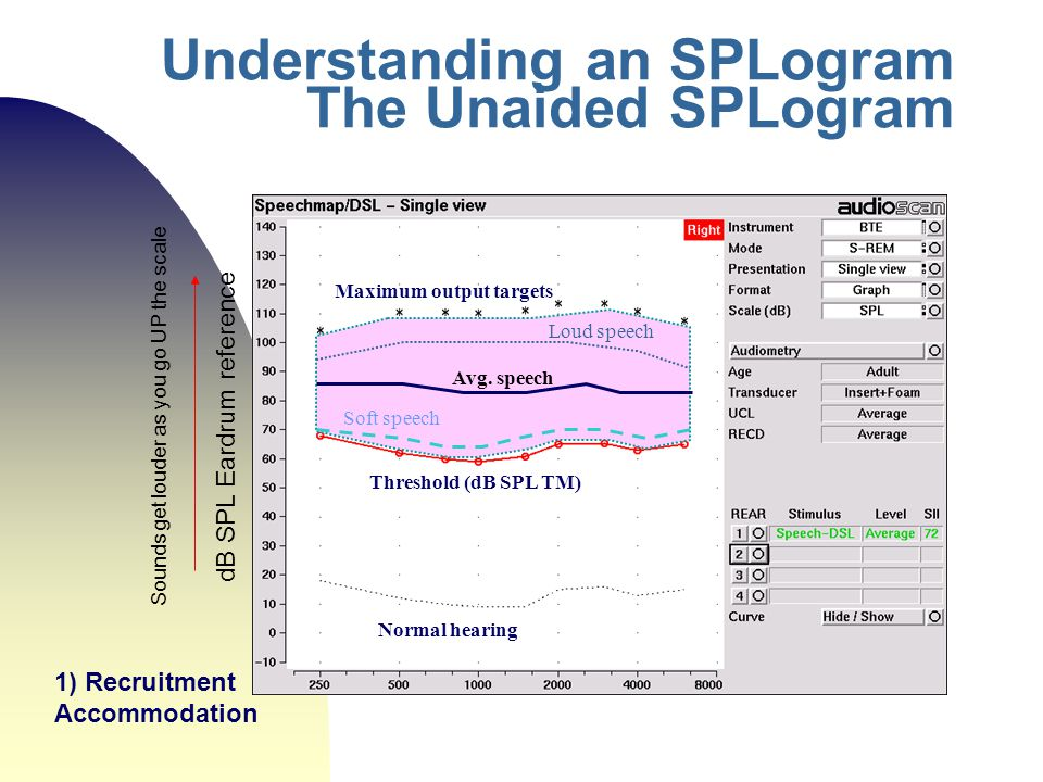 Understanding an SPLogram The Unaided SPLogram