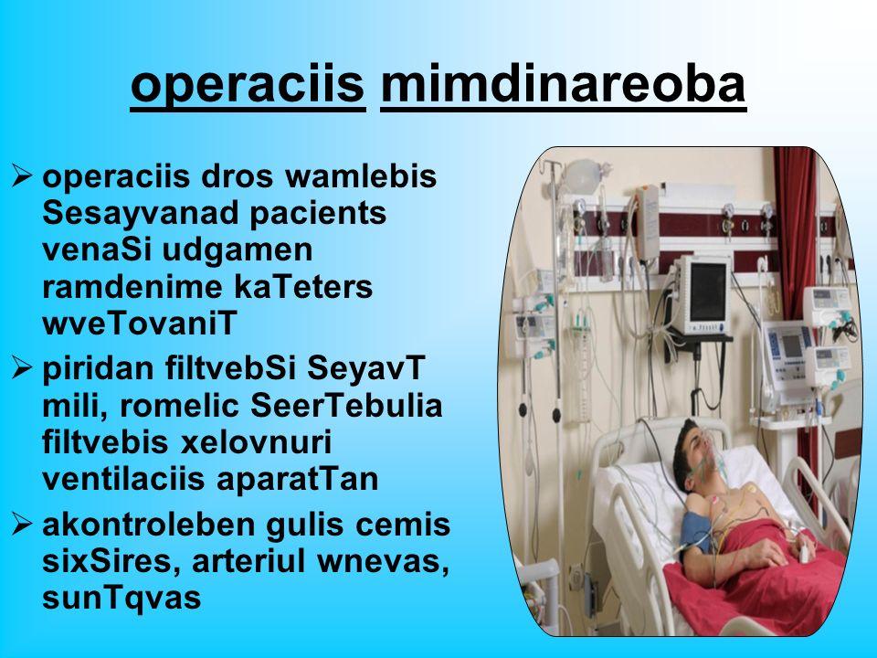 operaciis mimdinareoba