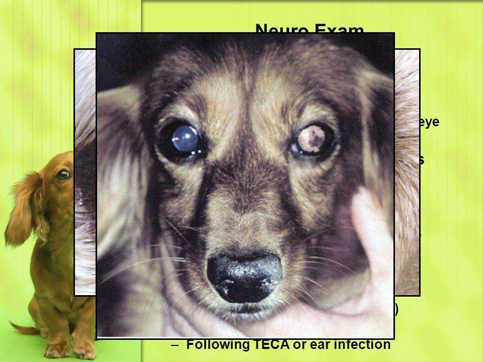 Neuro Exam Eye & Ear – Tear Production Signs of dry eye