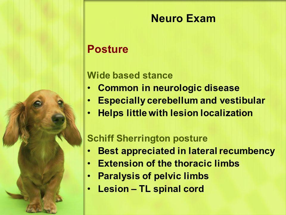 Neuro Exam Posture Wide based stance Common in neurologic disease