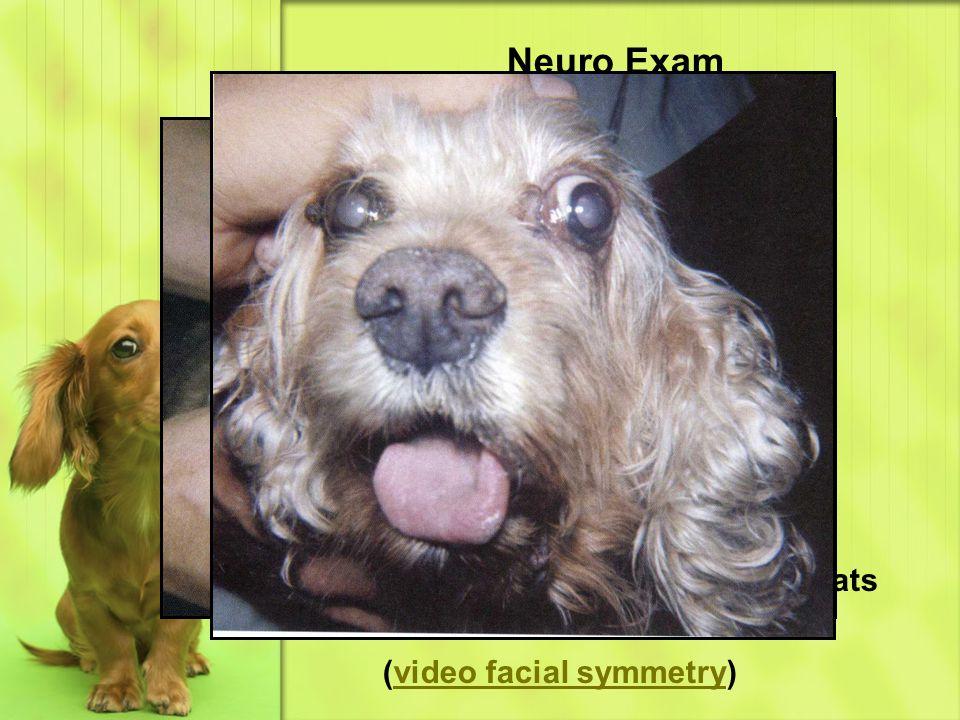 Neuro Exam CN 7 – facial Cranial Nerves Facial asymmetry
