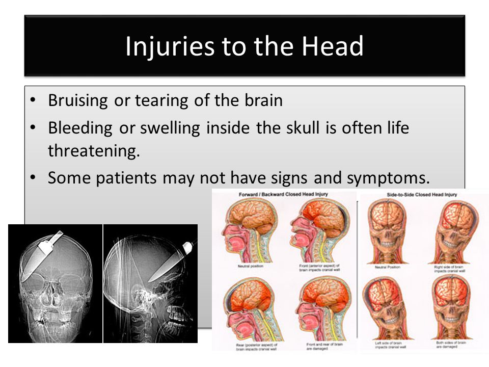 Injuries to the Head Bruising or tearing of the brain