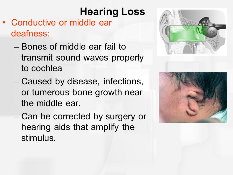 Hearing Loss Conductive or middle ear deafness: