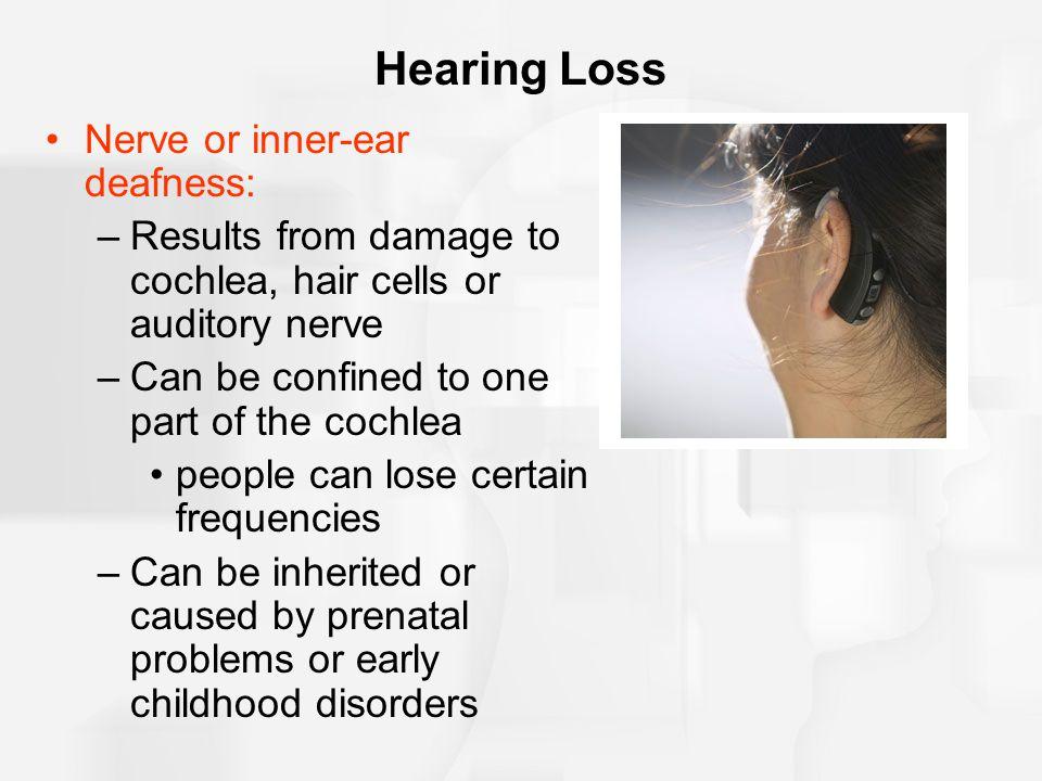 Hearing Loss Nerve or inner-ear deafness: