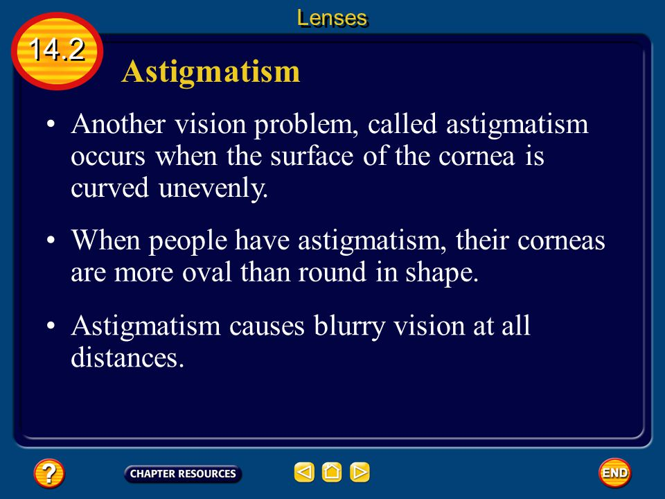 Lenses 14.2. Astigmatism. Another vision problem, called astigmatism occurs when the surface of the cornea is curved unevenly.
