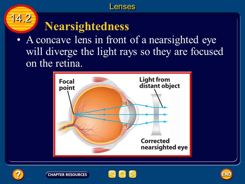 Lenses 14.2. Nearsightedness.