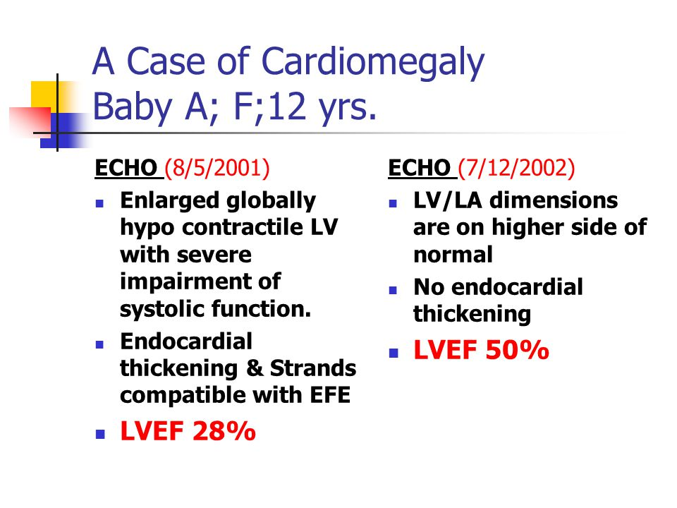 A Case of Cardiomegaly Baby A; F;12 yrs.