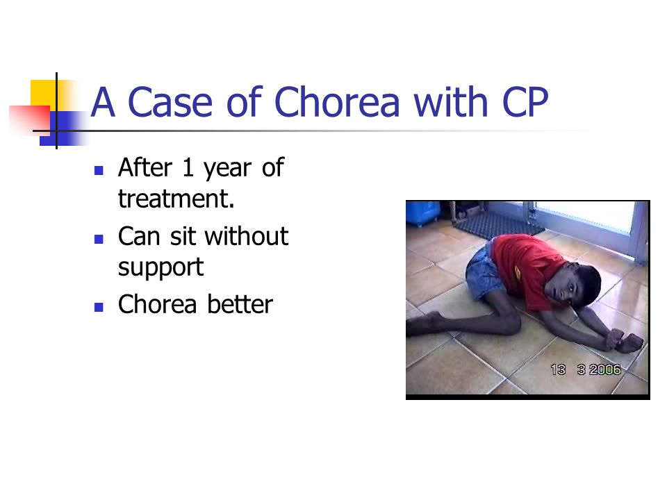 A Case of Chorea with CP After 1 year of treatment.