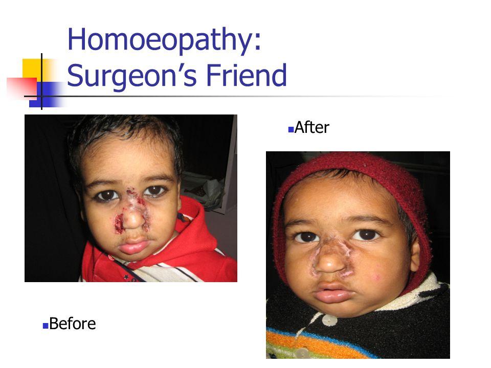 Homoeopathy: Surgeon's Friend