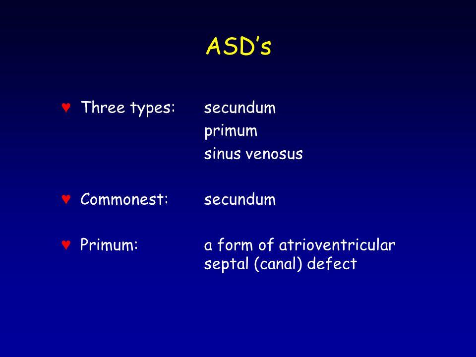 ASD's ♥ Three types: secundum primum sinus venosus