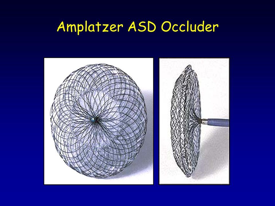 Amplatzer ASD Occluder