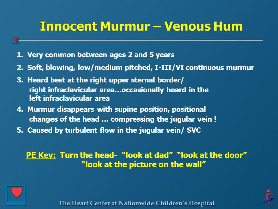Innocent Murmur – Venous Hum