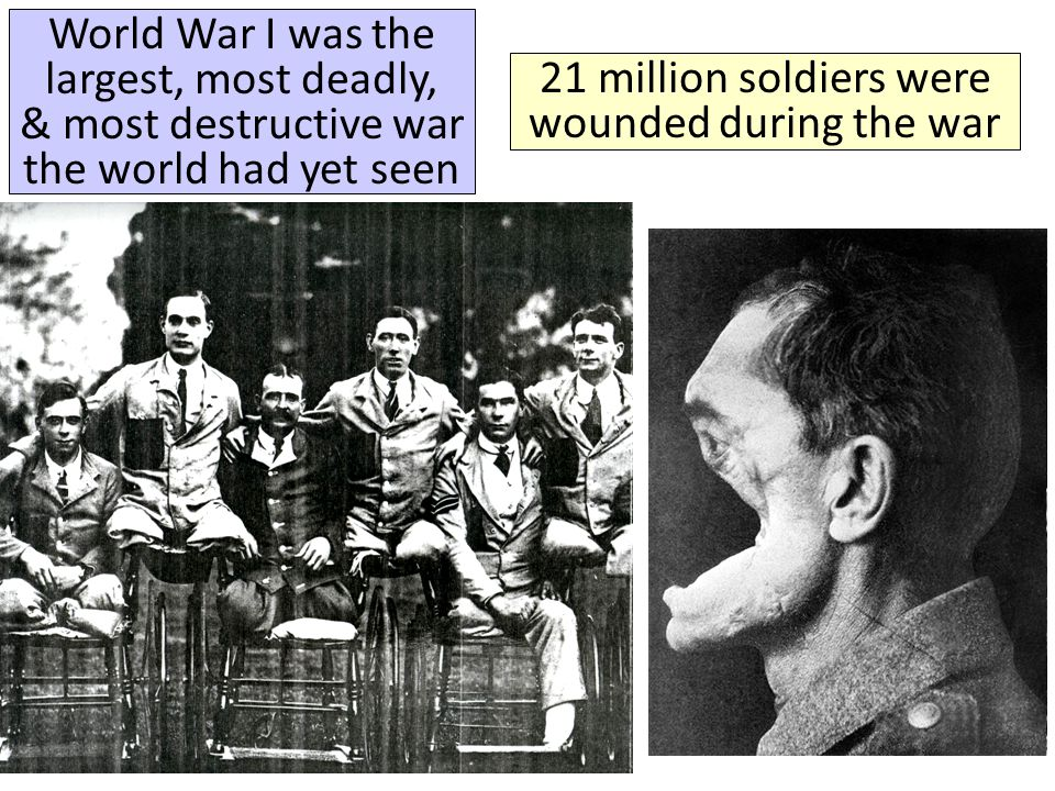 21 million soldiers were wounded during the war