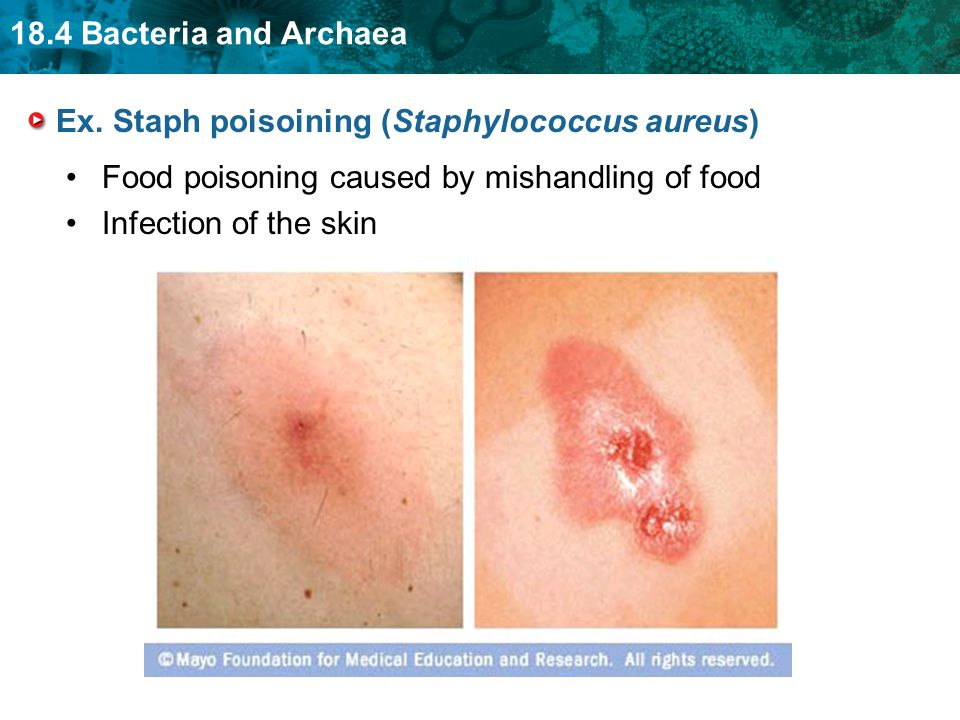 Ex. Staph poisoining (Staphylococcus aureus)