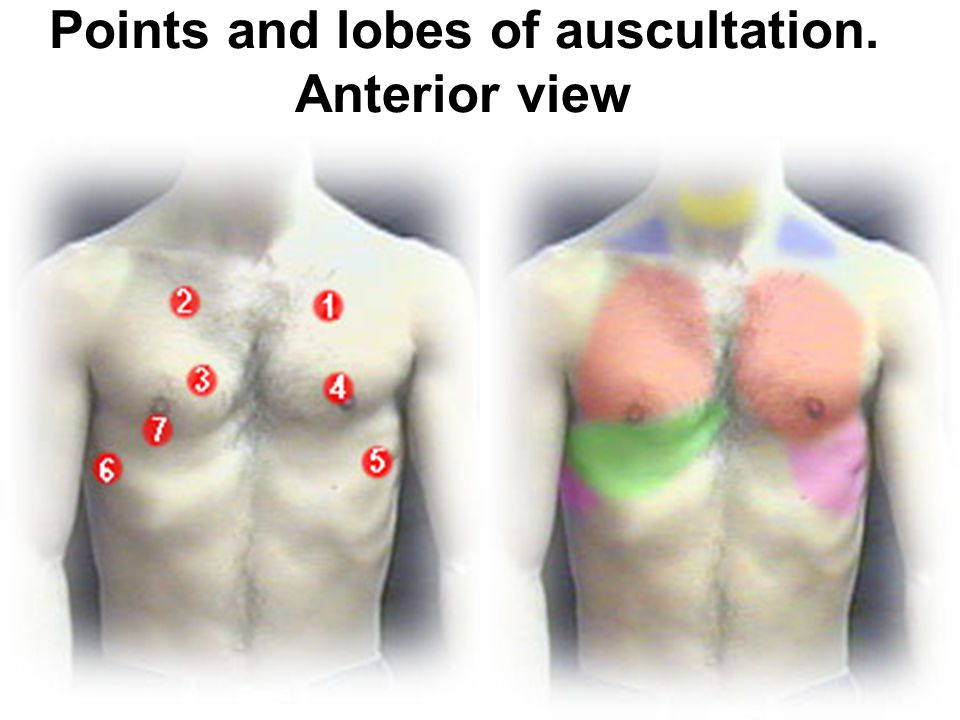 Points and lobes of auscultation. Anterior view