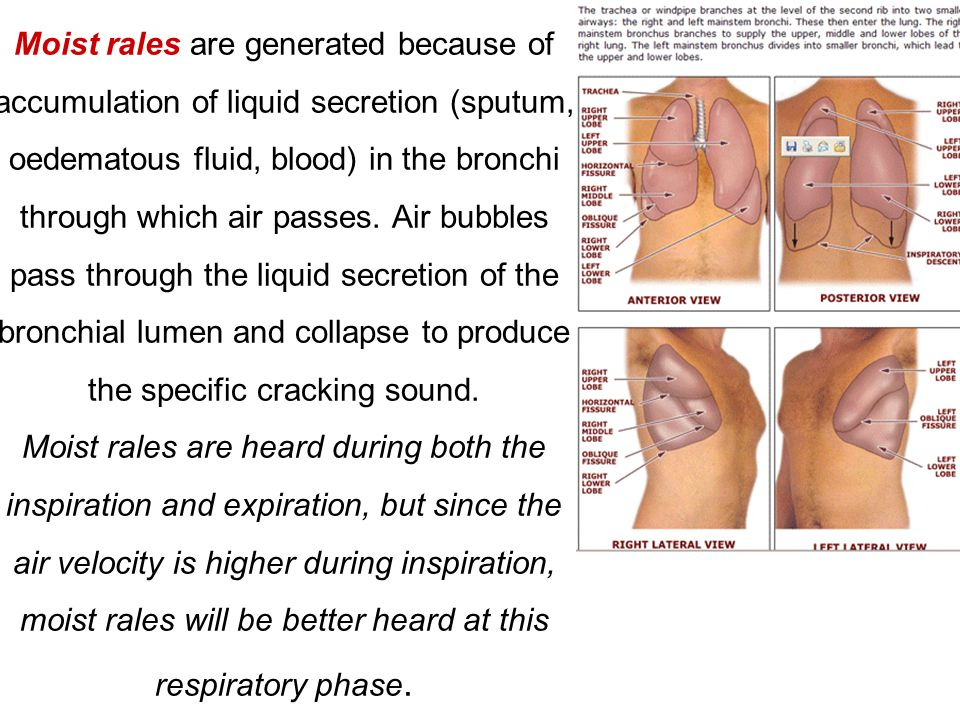 Moist rales are generated because of accumulation of liquid secretion (sputum, oedematous fluid, blood) in the bronchi through which air passes.
