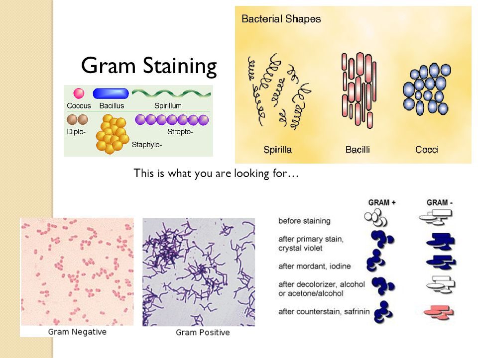 Gram Staining This is what you are looking for…