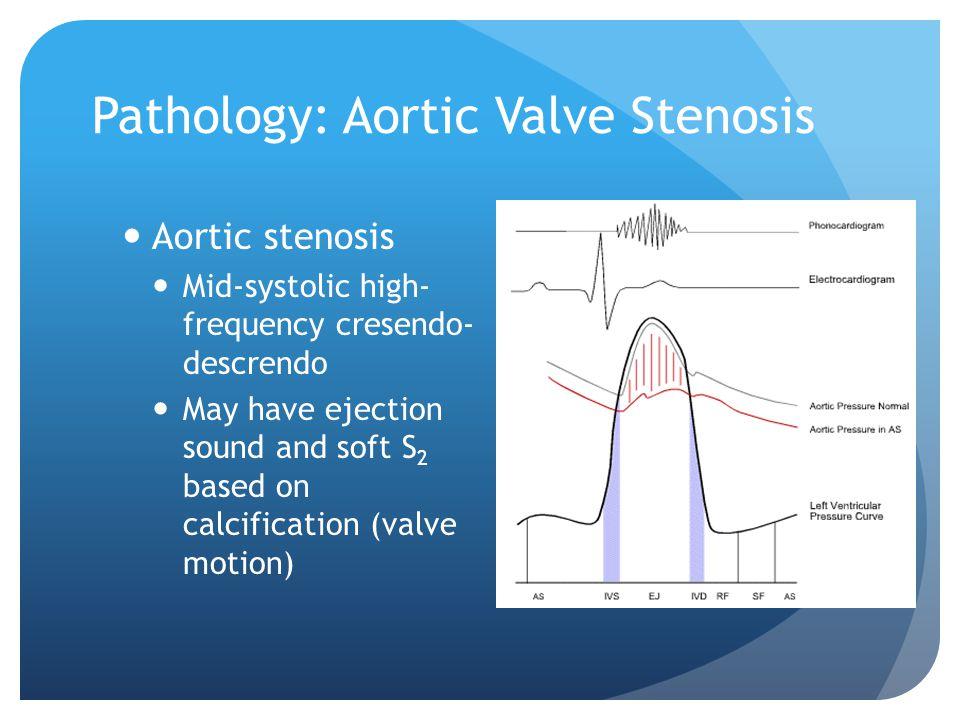 Pathology: Aortic Valve Stenosis