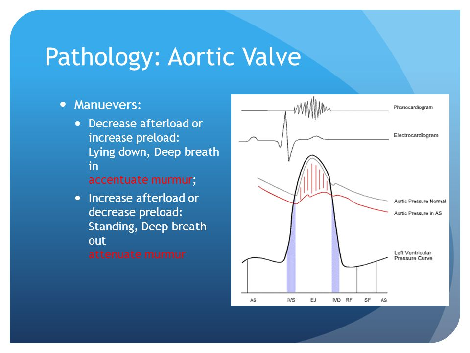 Pathology: Aortic Valve