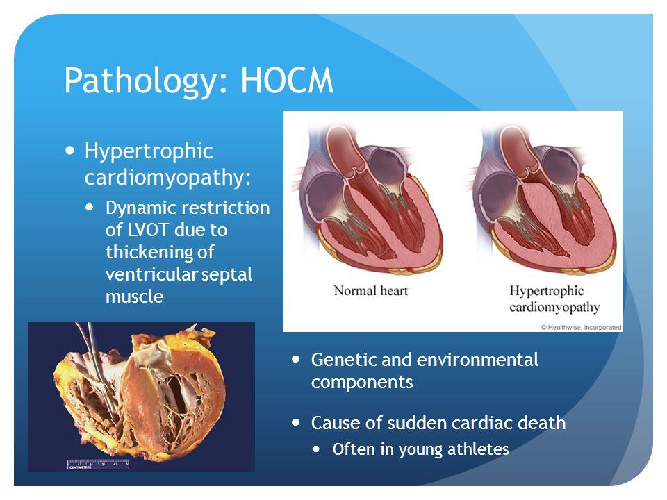 Pathology: HOCM Hypertrophic cardiomyopathy: