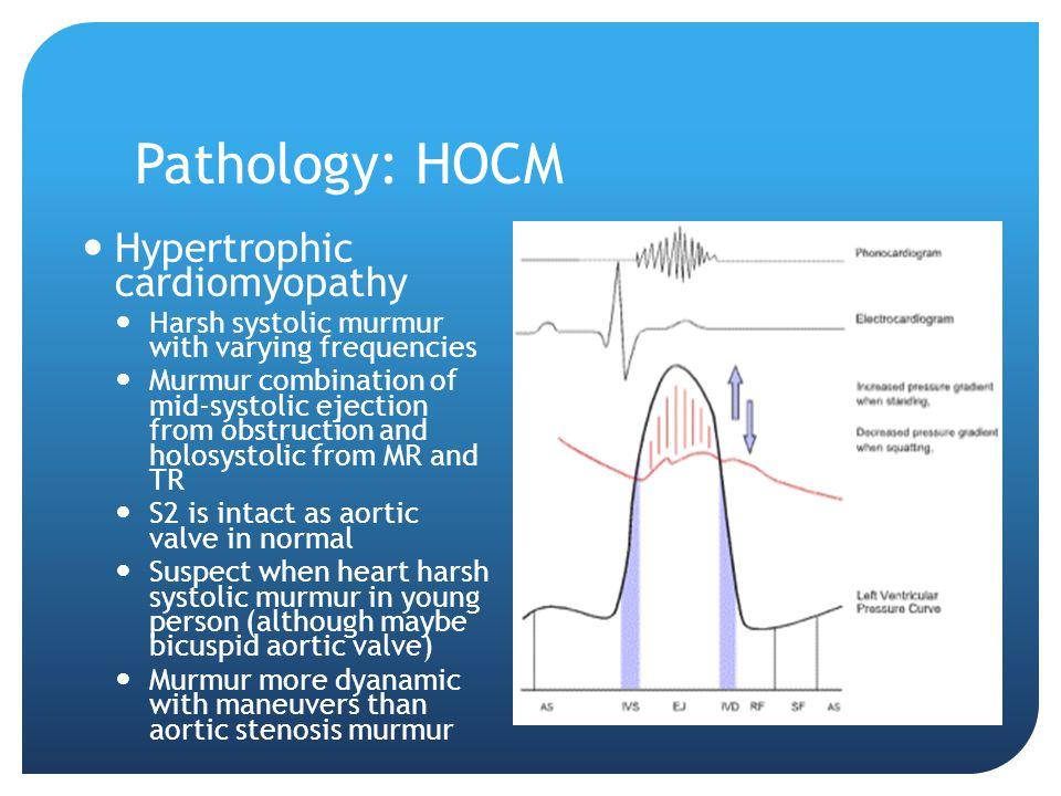 Pathology: HOCM Hypertrophic cardiomyopathy