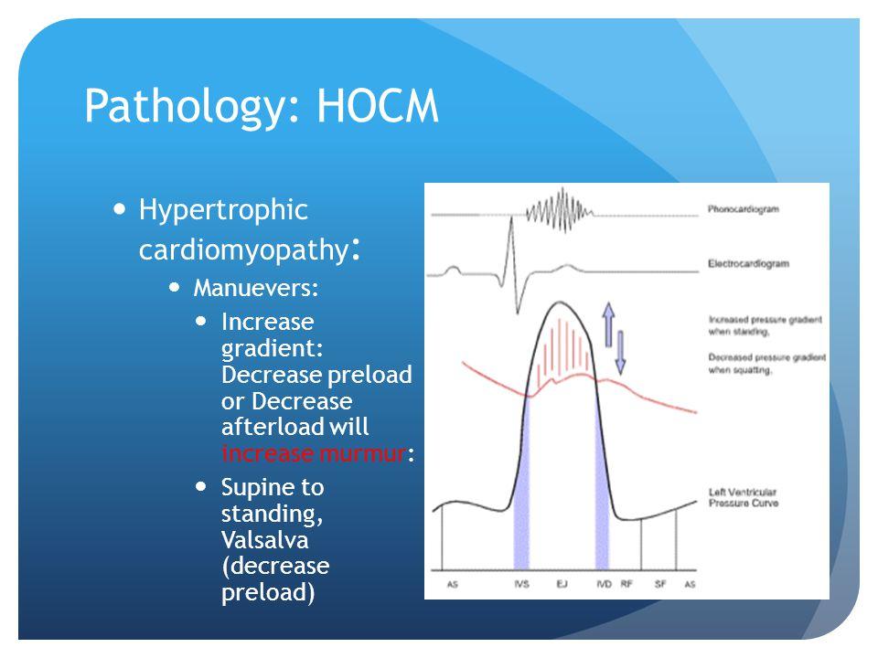 Pathology: HOCM Hypertrophic cardiomyopathy: Manuevers: