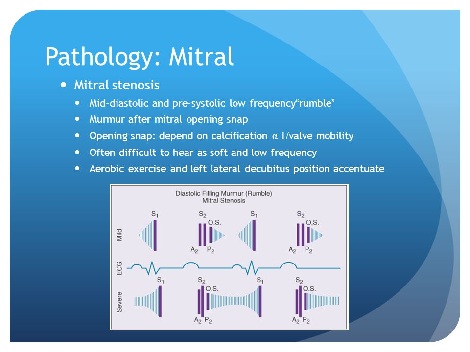 Pathology: Mitral Mitral stenosis