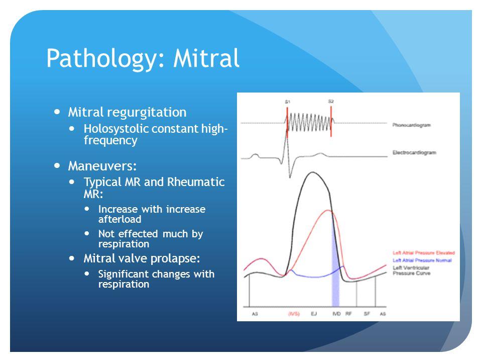 Pathology: Mitral Mitral regurgitation Maneuvers:
