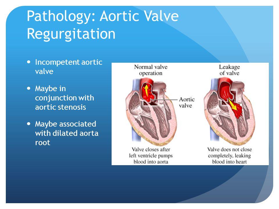 Pathology: Aortic Valve Regurgitation