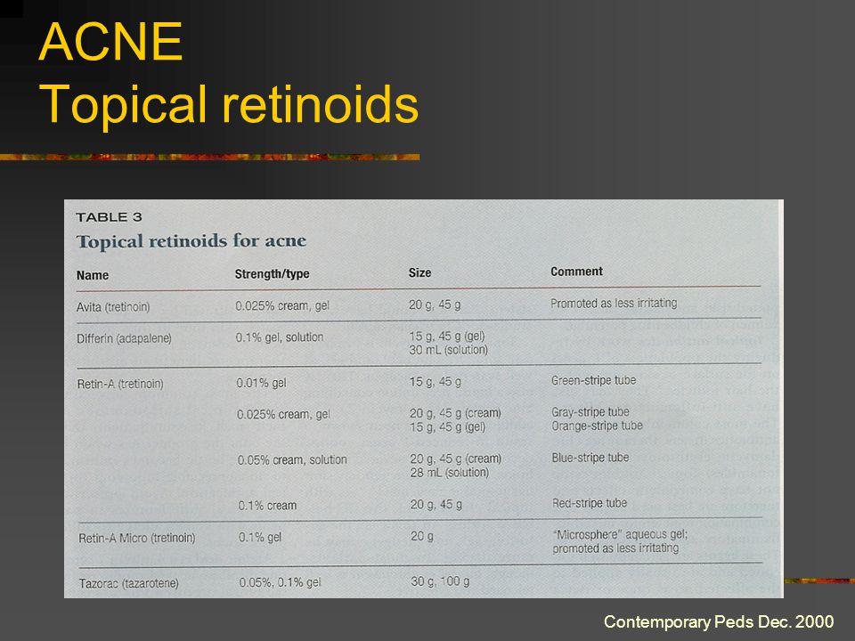 ACNE Topical retinoids