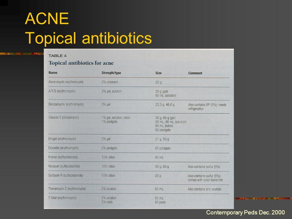 ACNE Topical antibiotics