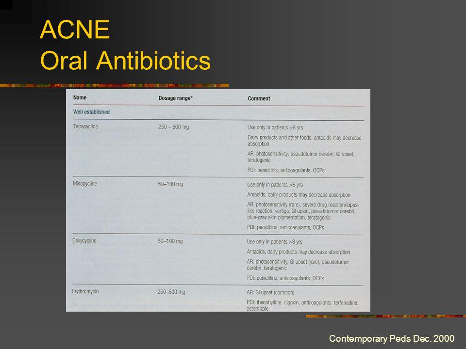 ACNE Oral Antibiotics Contemporary Peds Dec. 2000