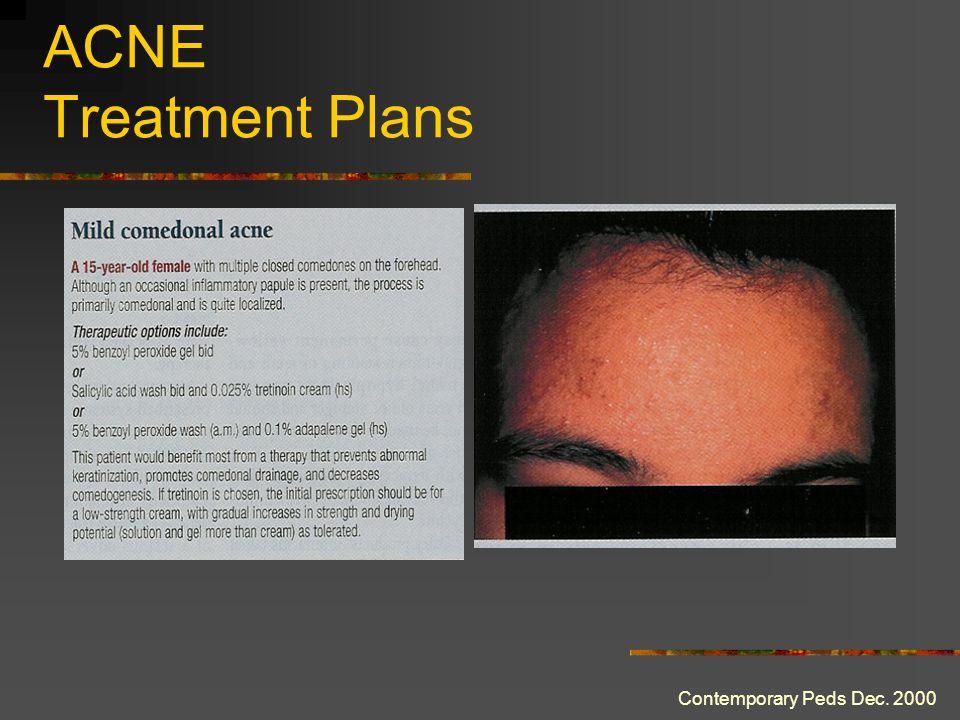 ACNE Treatment Plans Contemporary Peds Dec. 2000
