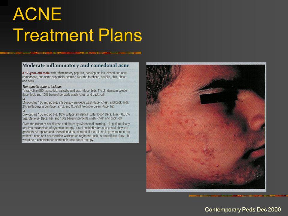 ACNE Treatment Plans Contemporary Peds Dec 2000