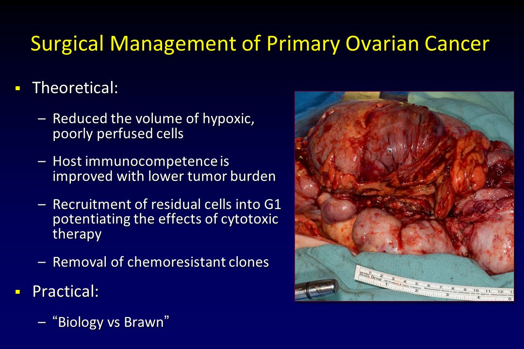 Surgical Management of Primary Ovarian Cancer