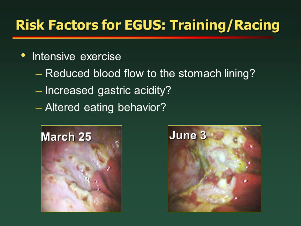 Risk Factors for EGUS: Training/Racing