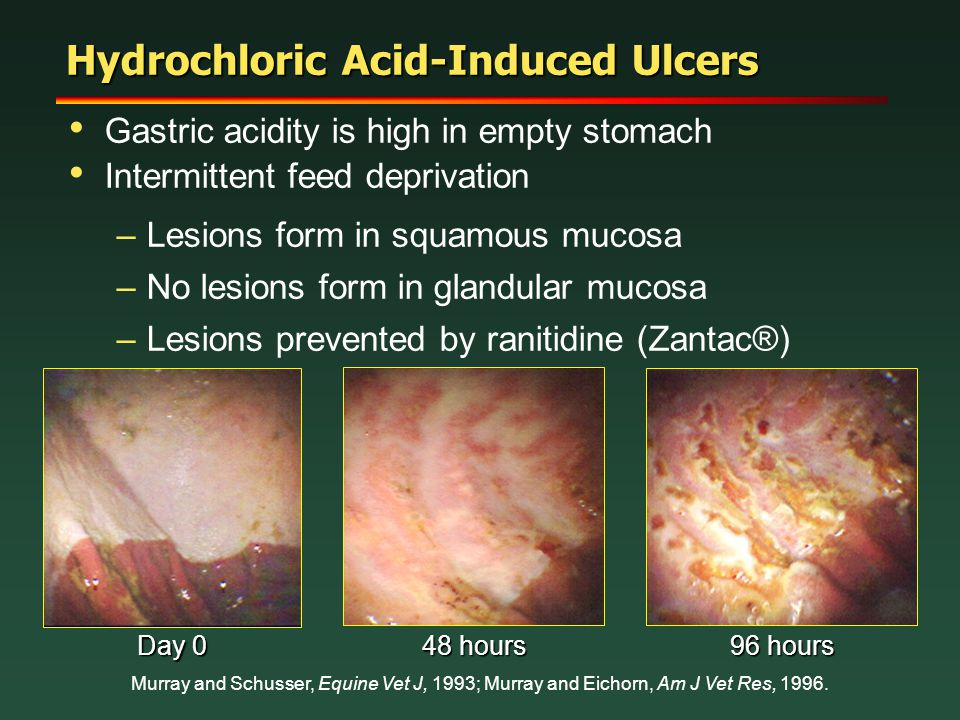 Hydrochloric Acid-Induced Ulcers