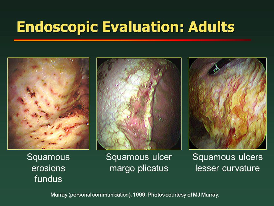 Endoscopic Evaluation: Adults