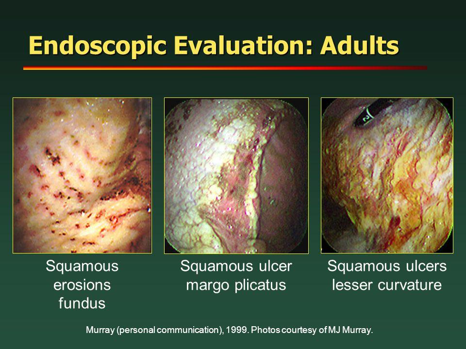 Endoscopic Evaluation: Adults