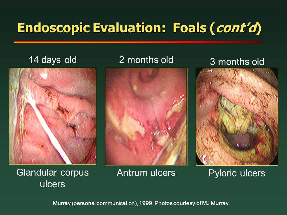 Endoscopic Evaluation: Foals (cont'd)
