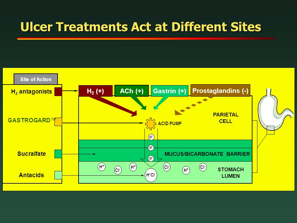 Ulcer Treatments Act at Different Sites