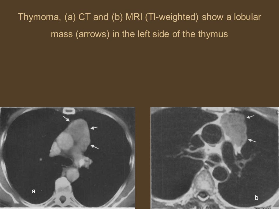 Thymoma, (a) CT and (b) MRI (Tl-weighted) show a lobular mass (arrows) in the left side of the thymus