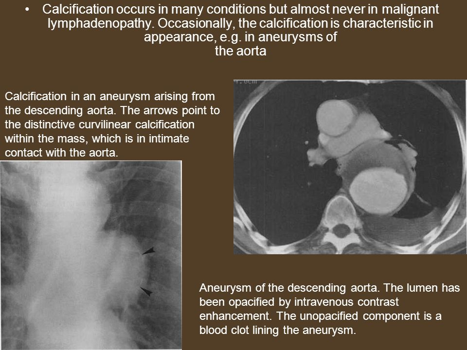 Calcification occurs in many conditions but almost never in malignant lymphadenopathy. Occasionally, the calcification is characteristic in appearance, e.g. in aneurysms of the aorta