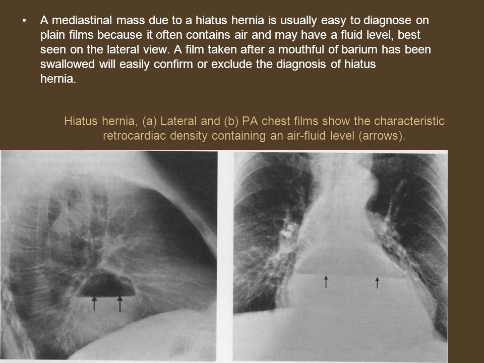 A mediastinal mass due to a hiatus hernia is usually easy to diagnose on plain films because it often contains air and may have a fluid level, best seen on the lateral view. A film taken after a mouthful of barium has been swallowed will easily confirm or exclude the diagnosis of hiatus hernia.