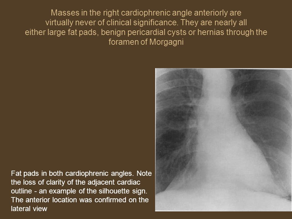 Masses in the right cardiophrenic angle anteriorly are virtually never of clinical significance. They are nearly all either large fat pads, benign pericardial cysts or hernias through the foramen of Morgagni