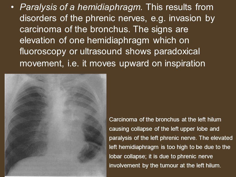 Paralysis of a hemidiaphragm